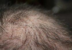 Förebygg och motverka håravfall